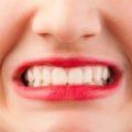 توصیههایی برای رفع دندان قروچه در خواب
