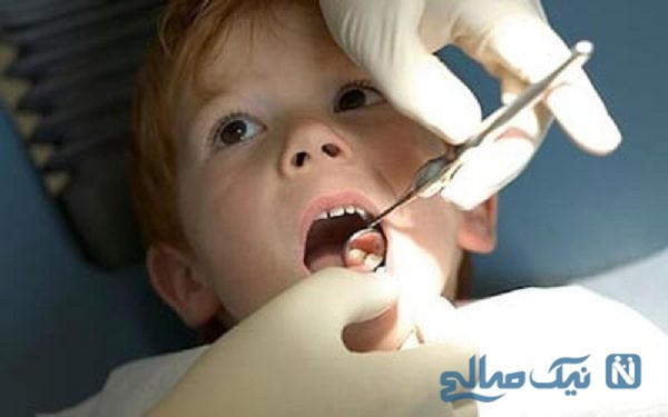عامل پوسیدگی دندان