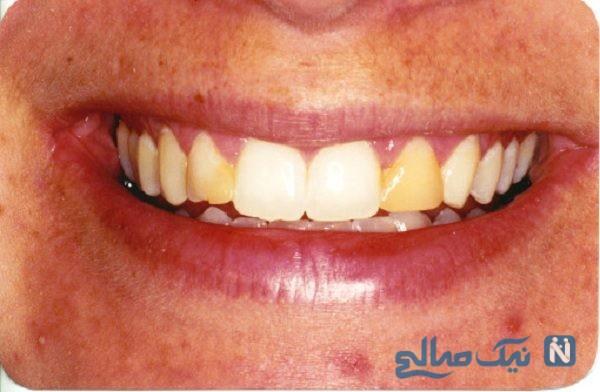 چرا دندانهای مان زرد میشوند؟
