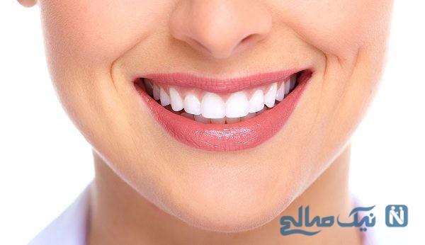 سلامت دندان ها