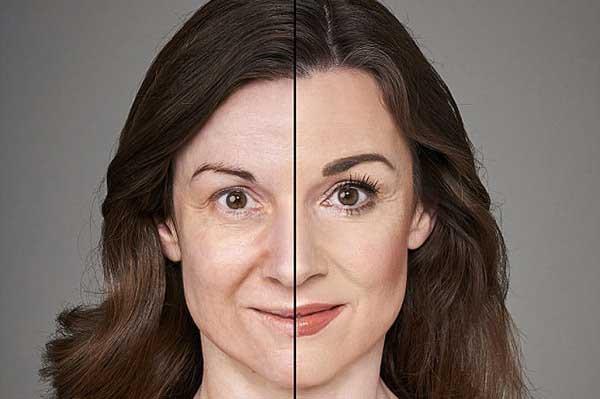 راه های لاغر کردن صورت