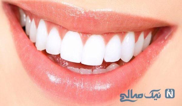 سفیدکردن دندان با ریحان