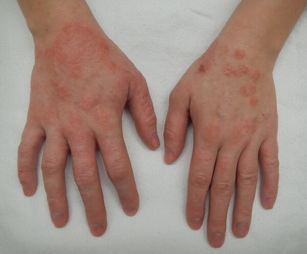 انواع التهاب پوستی