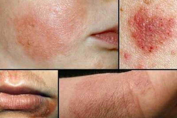 علل و عوامل انواع التهاب های پوستی و شیوه درمان آن + تصاویر