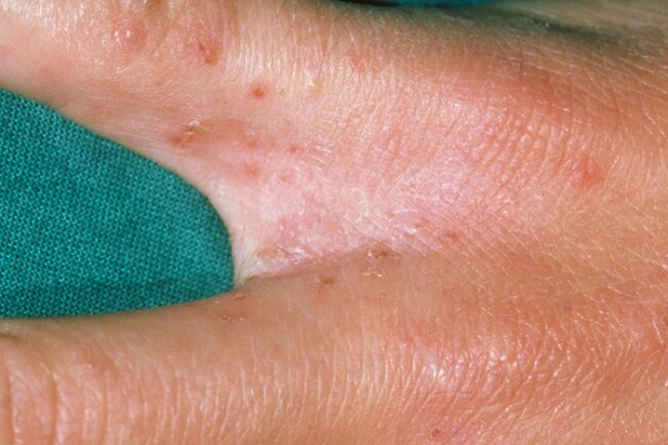 بیماری گال یا جَرَب چیست؟ + تصاویر