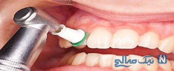 جرم گیری دندان ها