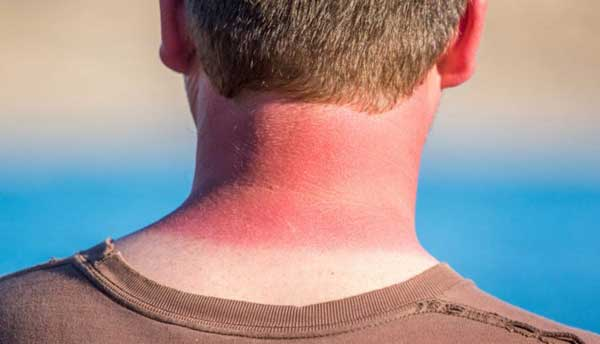 راه های موثر درمان و پیشگیری از آفتاب سوختگی در تابستان