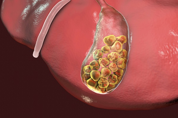 سنگ کیسه صفرا با دارو قابل درمان است