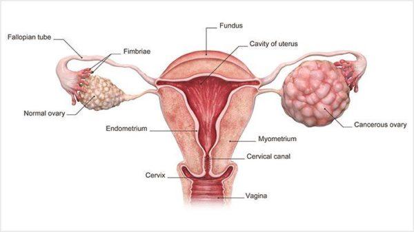 عوامل موثر بر سرطان تخمدان