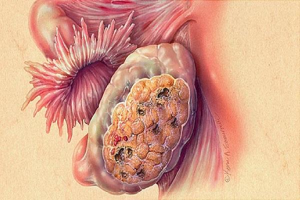 چه عواملی باعث سرطان تخمدان می شوند؟