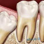 آیا دندان عقل نهفته را باید جراحی کرد؟
