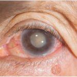 درمان آب مروارید با این قطره چشم جدید