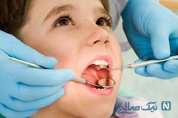 روش ساده درمان پوسیدگی دندان ها در خانه