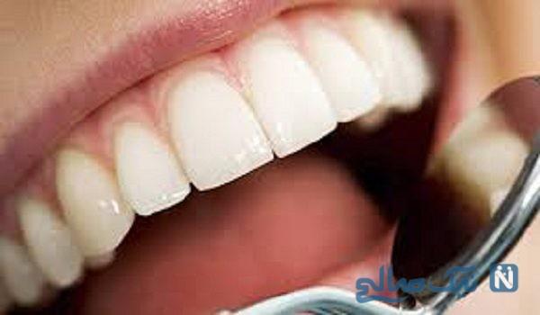 فایده ریشه شیرینبیان در پیشگیری از پوسیدگی دندان
