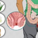 درد مقعدی یا سوزش مقعدی , از درمان تا بهبودی کامل