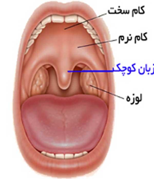 درمان تورم زبان کوچک