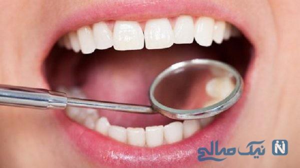 خرابی دندان ها