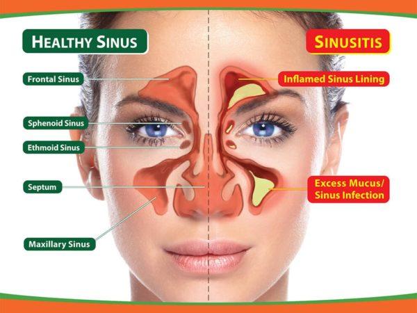 درمان طبیعی سینوزیت