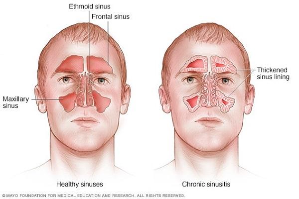 راههای طبیعی درمان سینوزیت