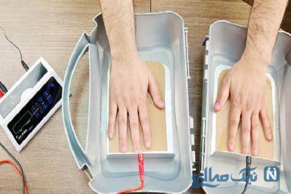 درمان عرق کردن کف دست و پا