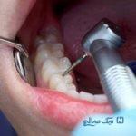 ۵ سوالی که درباره عصب کشی دندان میپرسند