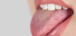 با تطبیق این تصاویر با زبانتان بفهمید چه بیماری دارید