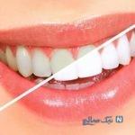 چگونه جرم دندان ها را بدون هزینه از بین ببریم؟