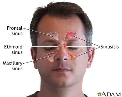 باید و نبایدهای درمان سینوزیت پیش از جراحی زیبایی بینی