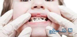 با این ۵ اقدام از کرمخوردگی دندانهایتان راحت شوید