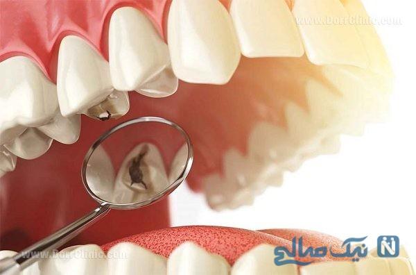 جلوگیری از کرم خوردگی دندان