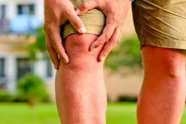 درمان عفونت مفصل