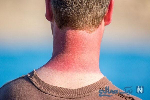 راههای جلوگیری از آفتاب سوختگی