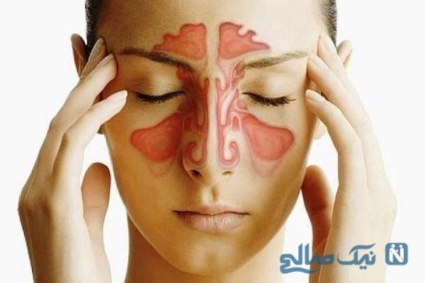 پیشنهادهایی برای کنار آمدن با علائم سینوزیت