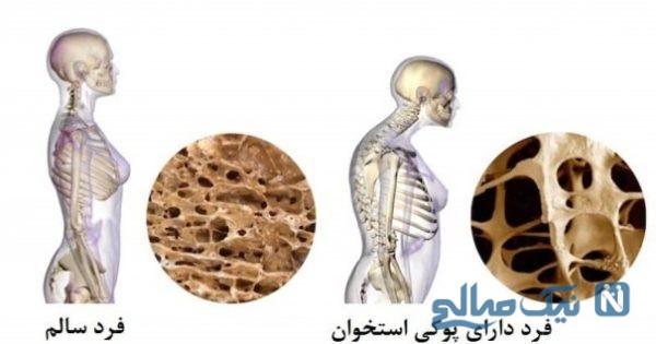 جلوگیری از پوکی استخوان