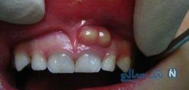 اطلاعاتی درباره آبسه دندانی و راه های درمان