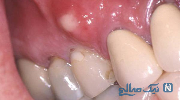 آبسه دندانی