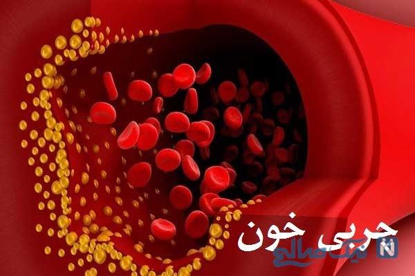 اولین علامت افزایش چربی خون