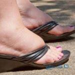 تورم پا نشانه چیست؟