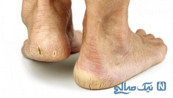 درمان ترک پاها