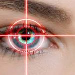 برخی پیامدهای ناشی از عمل لیزیک چشم