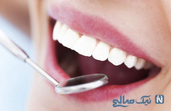 عوارض پرکردن دندان