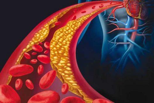 افزایش کلسترول نوع بد