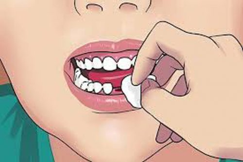 حفره دندانی خشک