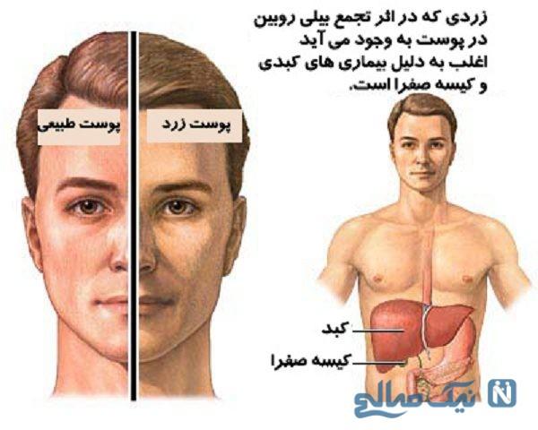 علائم اختلالات کبدی