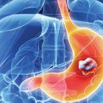 علائم و نشانه های سرطان معده را بشناسید