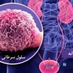 عوامل ایجاد کننده سرطان و پاکسازی مثانه