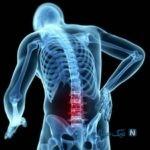 نسخه خانگی برای تسکین درد سیاتیک