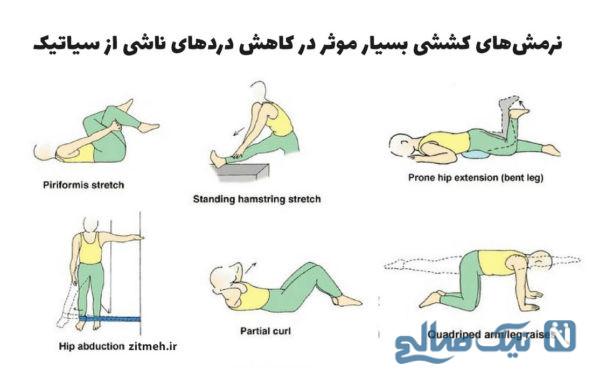 تسکین درد سیاتیک