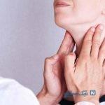 ۱۰ بیماری رایج مری را بشناسید