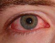 علت قرمزی چشم ها و درمانهای خانگی